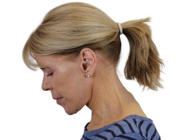 Facelift Gallery - Patient 50517878 - Image 10