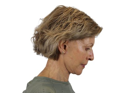 Facelift Gallery - Patient 50517879 - Image 6