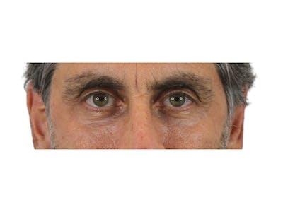 Blepharoplasty Gallery - Patient 53828309 - Image 8