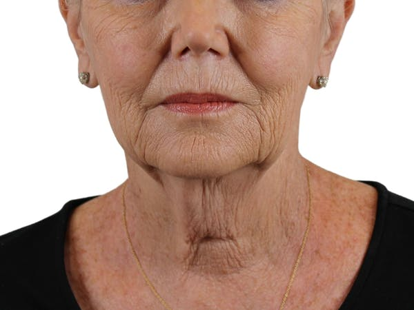 Facelift Gallery - Patient 59893859 - Image 3