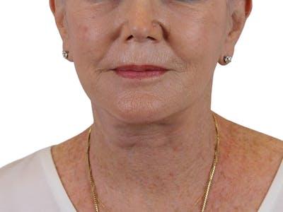 Facelift Gallery - Patient 59893859 - Image 4