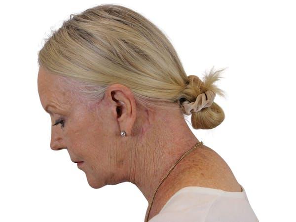 Facelift Gallery - Patient 59893859 - Image 6
