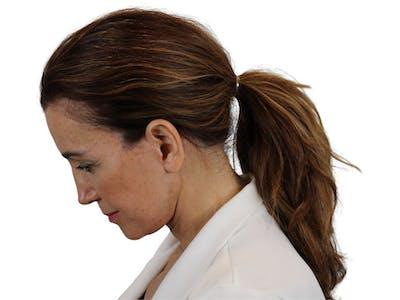 Facelift Gallery - Patient 59893925 - Image 4