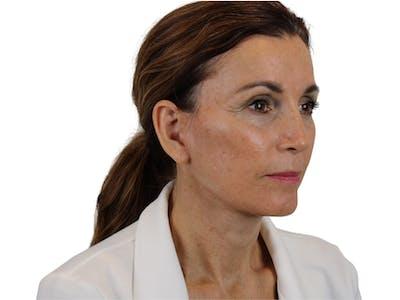 Facelift Gallery - Patient 59893925 - Image 8