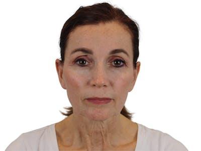Facelift Gallery - Patient 59893925 - Image 1