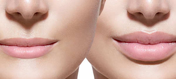Mangat Plastic Surgery Institute and Skin Care Blog | What Is Lip Enhancement And Is It Right For Me?