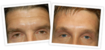 Brow Lift Gallery - Patient 10380773 - Image 1