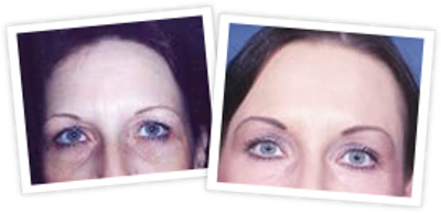 Brow Lift Gallery - Patient 10380772 - Image 1