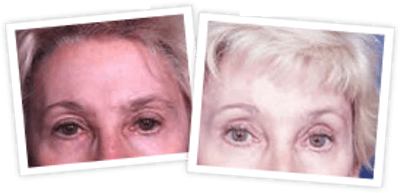 Brow Lift Gallery - Patient 10380771 - Image 1
