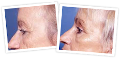 Brow Lift Gallery - Patient 10380770 - Image 1