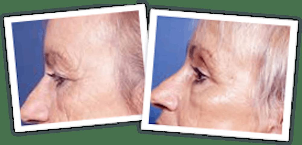 Brow Lift Gallery - Patient 10380770 - Image 1