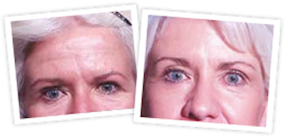 Brow Lift Gallery - Patient 10380769 - Image 1