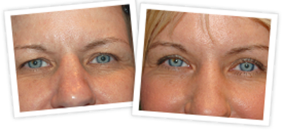 Brow Lift Gallery - Patient 10380768 - Image 1