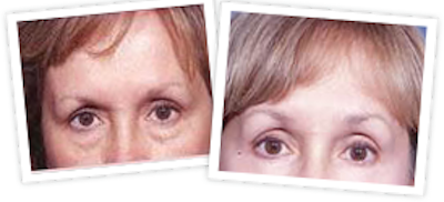 Brow Lift Gallery - Patient 10380767 - Image 1