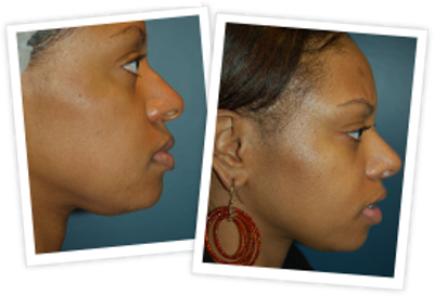 Rhinoplasty Gallery - Patient 10380753 - Image 1