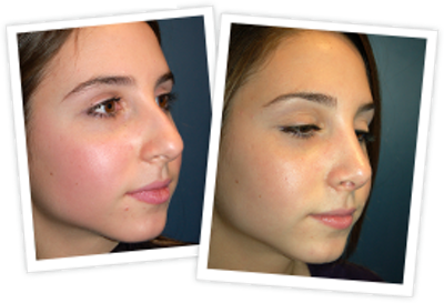 Rhinoplasty Gallery - Patient 10380752 - Image 1