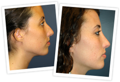 Rhinoplasty Gallery - Patient 10380751 - Image 1