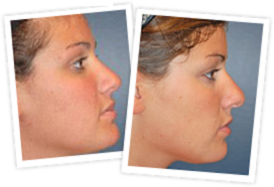 Rhinoplasty Gallery - Patient 10380537 - Image 1