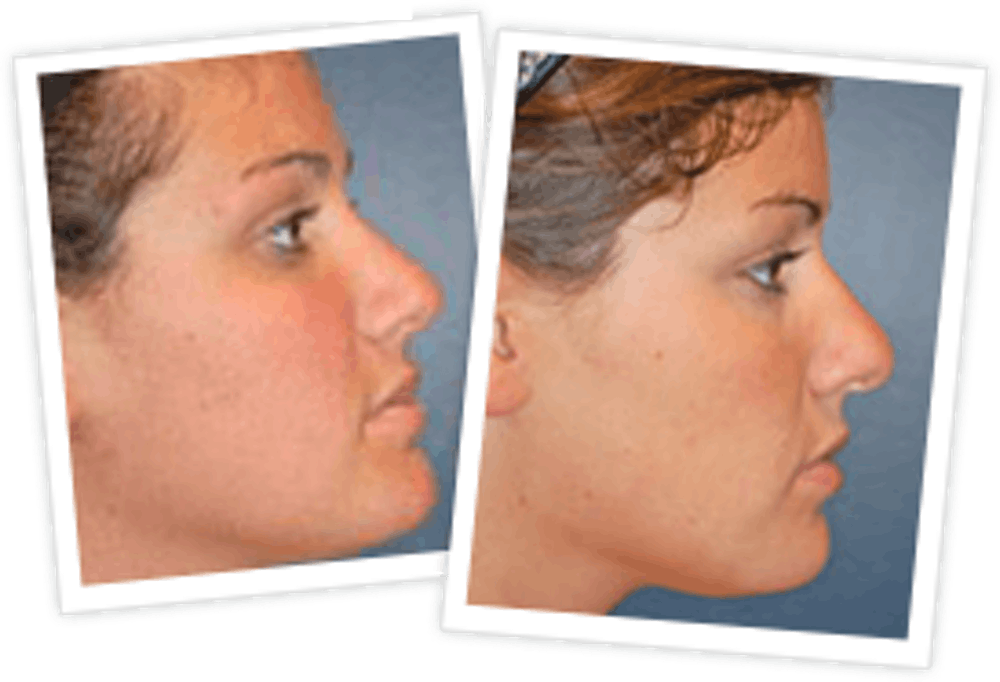 Rhinoplasty Gallery - Patient 10380539 - Image 2