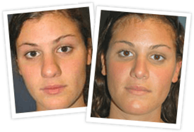 Rhinoplasty Gallery - Patient 10380539 - Image 1