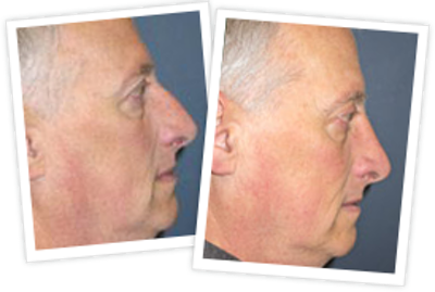 Rhinoplasty Gallery - Patient 10380535 - Image 1