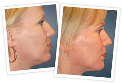 Rhinoplasty Gallery - Patient 10380538 - Image 1