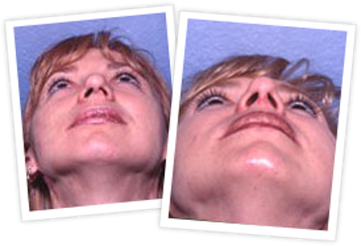 Rhinoplasty Gallery - Patient 10380533 - Image 1