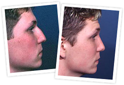 Rhinoplasty Gallery - Patient 10380532 - Image 1