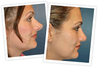 Rhinoplasty Gallery - Patient 10380531 - Image 1