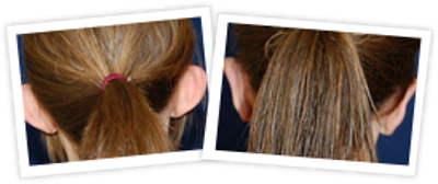 Ear Pinning Gallery - Patient 10380479 - Image 1