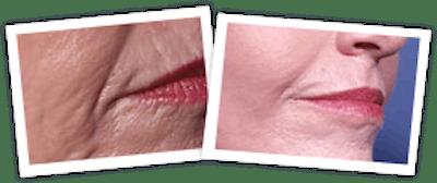 Chemical Peel / Skin Resurfacing Gallery - Patient 10380760 - Image 1