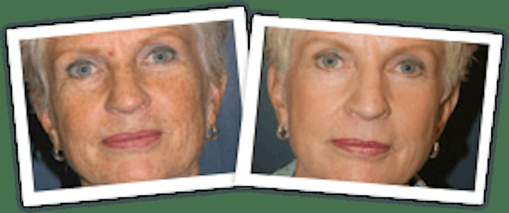Chemical Peel / Skin Resurfacing Gallery - Patient 10380761 - Image 1