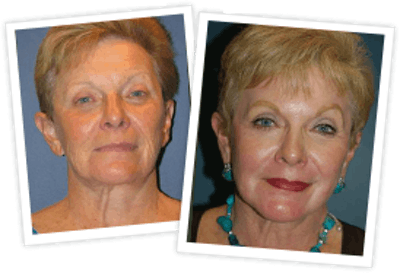Chemical Peel / Skin Resurfacing Gallery - Patient 10380758 - Image 1