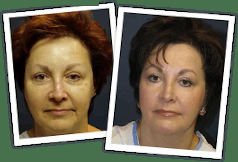 Chemical Peel / Skin Resurfacing Gallery - Patient 10380757 - Image 1