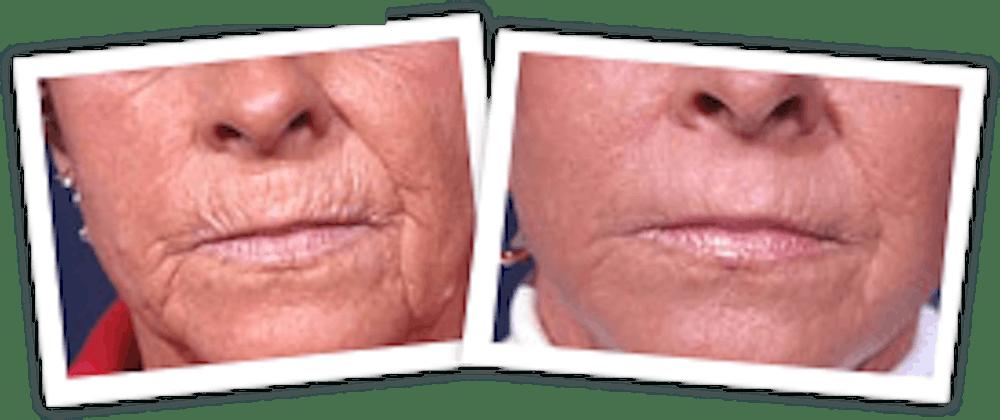 Chemical Peel / Skin Resurfacing Gallery - Patient 10380759 - Image 1