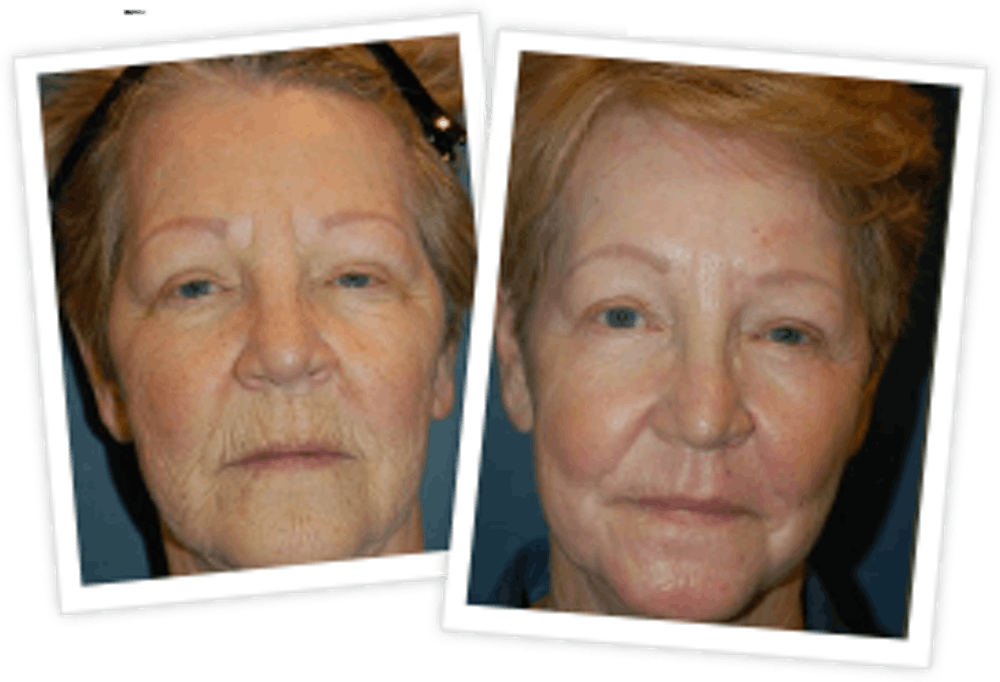 Chemical Peel / Skin Resurfacing Gallery - Patient 10380756 - Image 1