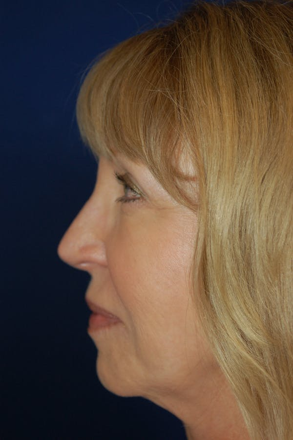 Fat Transfer Gallery - Patient 10380372 - Image 3