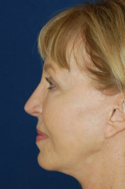 Facelift Gallery - Patient 10131843 - Image 4