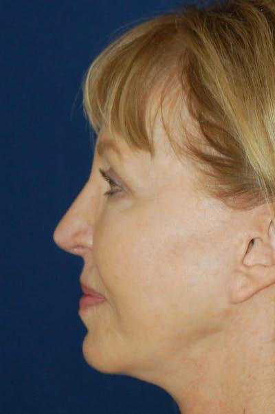 Chin & Cheek Augmentation Gallery - Patient 10380365 - Image 4