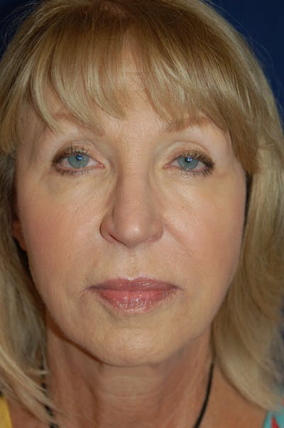 Facelift Gallery - Patient 10131843 - Image 1