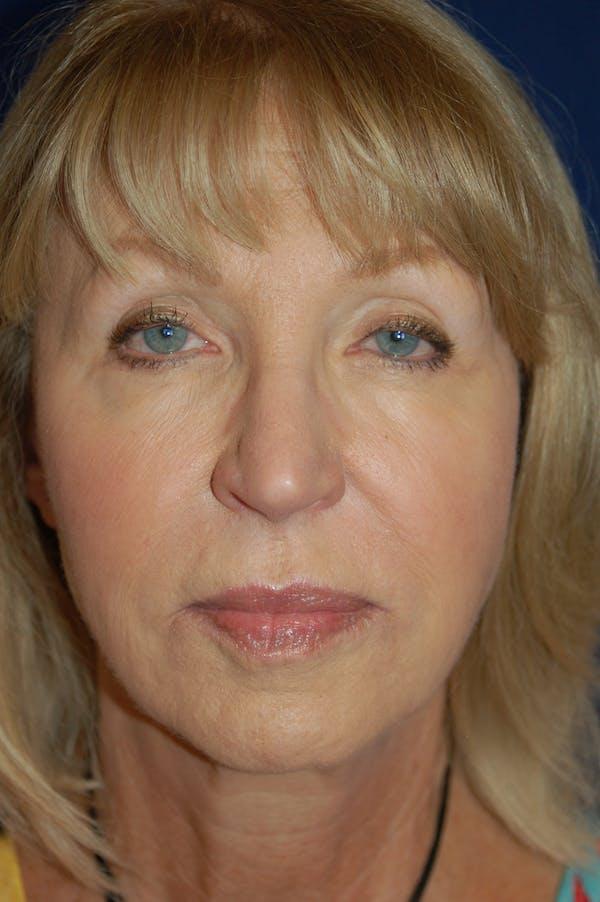 Chin & Cheek Augmentation Gallery - Patient 10380365 - Image 1