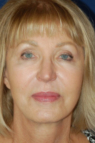 Facelift Gallery - Patient 10131843 - Image 2