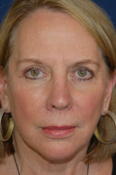 Facelift Gallery - Patient 10131853 - Image 2