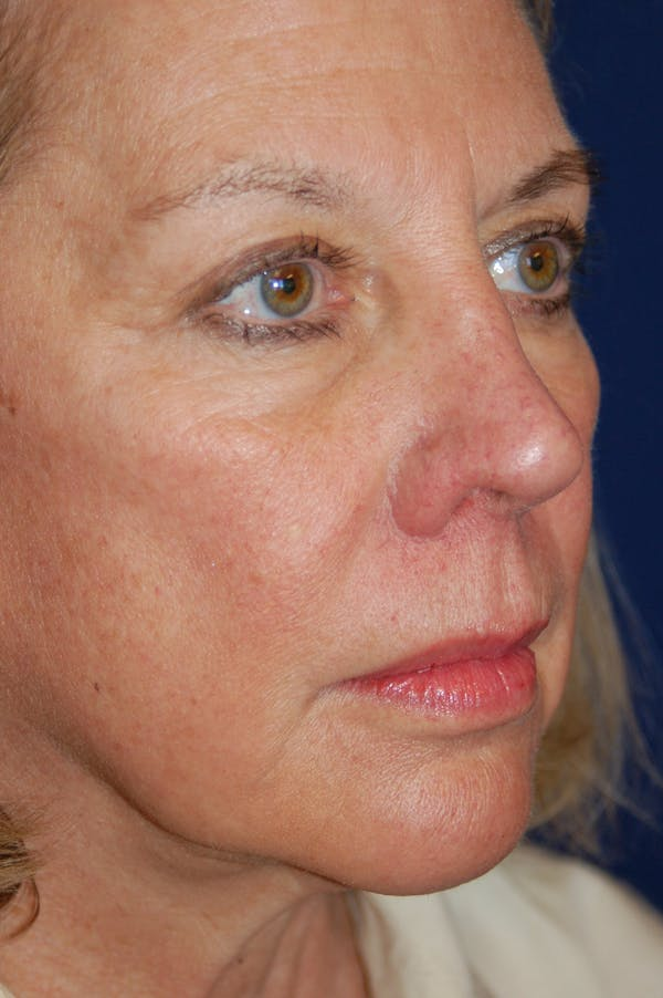 Eyelid Surgery Gallery - Patient 10380329 - Image 5