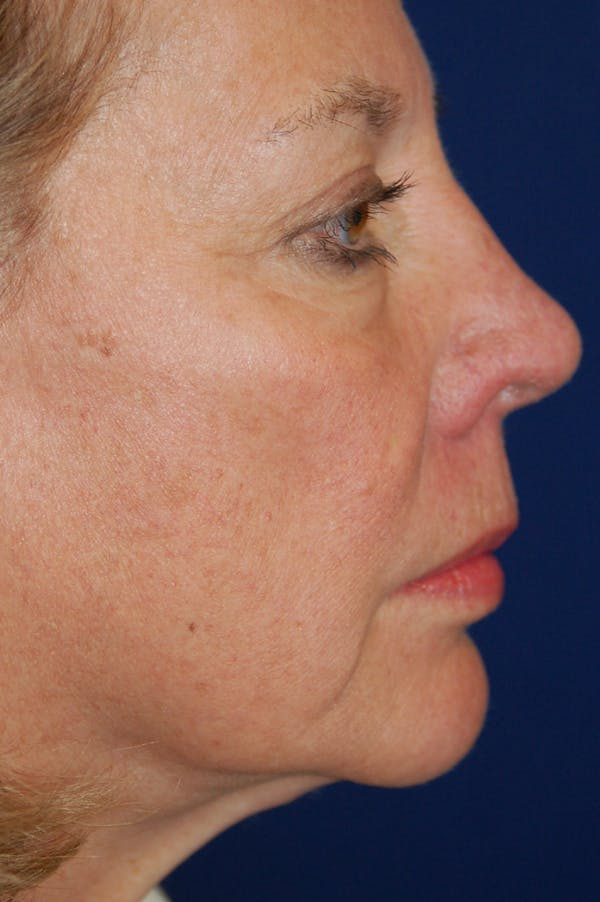 Eyelid Surgery Gallery - Patient 10380329 - Image 3