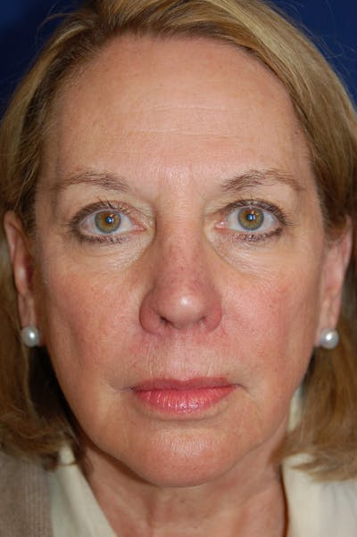 Facelift Gallery - Patient 10131853 - Image 1