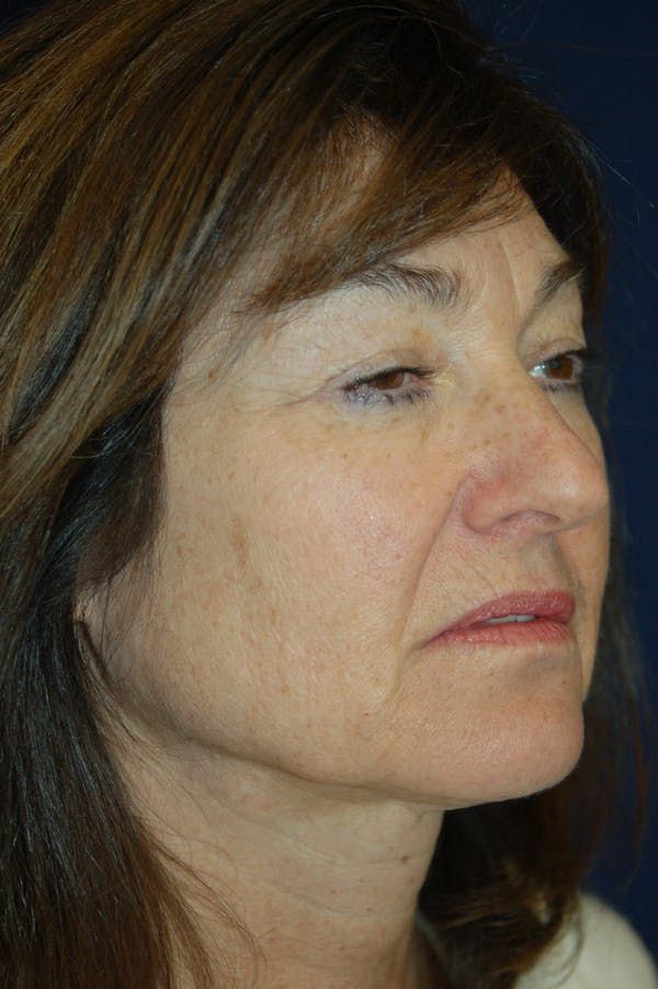 Facelift Gallery - Patient 10131854 - Image 1