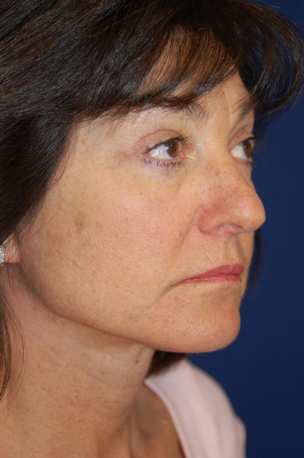 Facelift Gallery - Patient 10131854 - Image 2