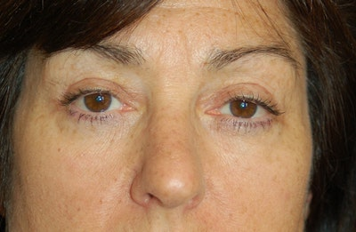 Eyelid Surgery Gallery - Patient 10380340 - Image 2