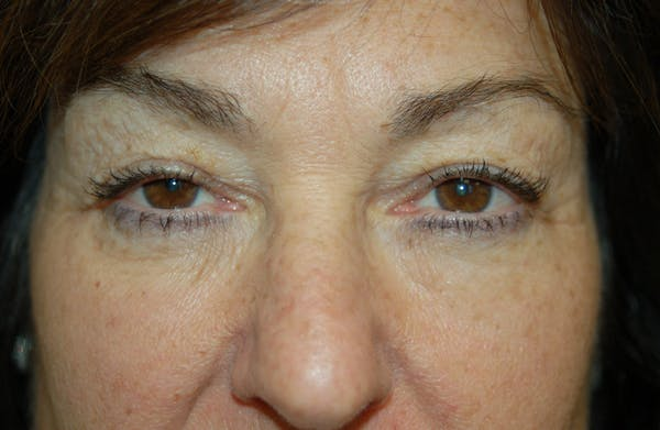 Facelift Gallery - Patient 10131854 - Image 3